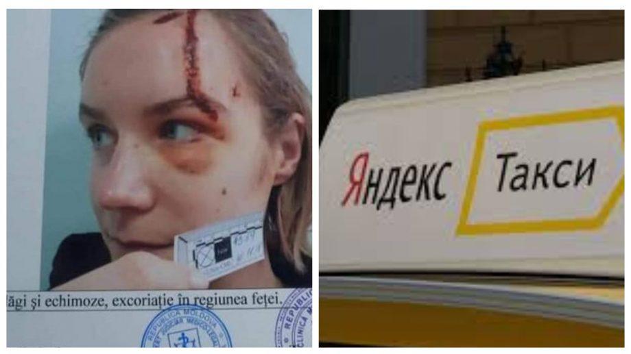 Пресс-служба Yandex.Taxi прокомментировала инцидент с девушкой, которая попала в аварию на таки