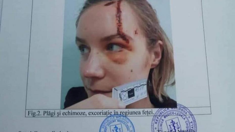 В Кишиневе девушка попала в аварию на Yandex.Taxi. Компания отказывается выплачивать компенсацию