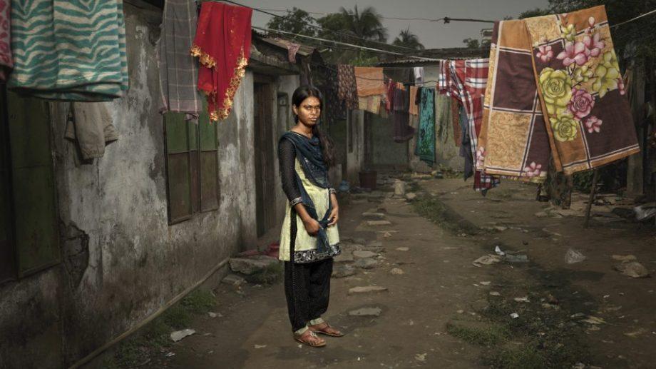 (фото) Увидеть человека за шрамами. Жертвы кислотных атак атак из Бангладеш